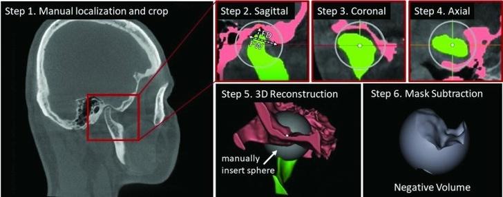 Рисунок 2. Этапы ручного распознавания височно-нижнечелюстного сустава с использованием метода отрицательного объема, который также лежит в основе автоматизированной процедуры, предложенной авторами исследования. Распознавание вручную занимает около часа и требует отрисовки масок вокруг сложных структур нижней челюсти и височной кости в трех проекциях — сагиттальной, корональной и аксиальной — для каждого среза интересующего объема, пока полученная 3D-реконструкция не позволит вычесть «шар» отрицательного объема из введенной вручную сферы. Изображение: Кристина Беликова и др./Scientific Reports
