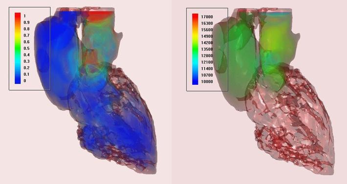 Объемная визуализация: скорость и давление крови